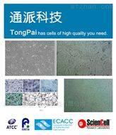 NCI-H1395细胞培养